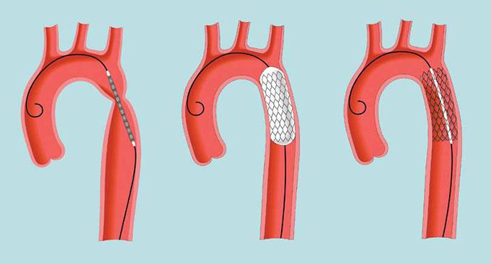 Коарктация аорты - лечение эндоваскулярными методами в отделении ...
